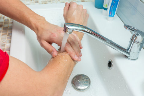 Precautionary Measures When Treating Burns